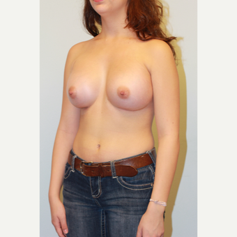 25-34 year old woman treated with Breast Augmentation after 3026810