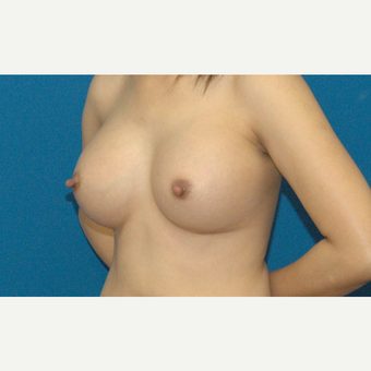 34 year old Asian woman treated with Breast Implants after 3205542