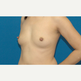 34 year old Asian woman treated with Breast Implants before 3205542