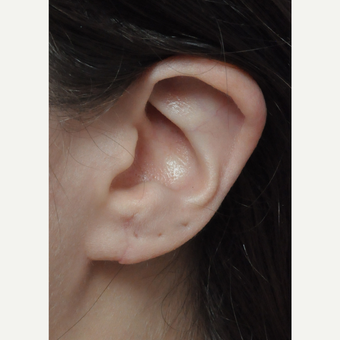 18-24 year old woman treated with Ear Lobe Surgery after 3658354