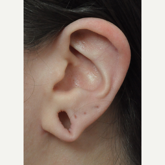 18-24 year old woman treated with Ear Lobe Surgery before 3658354
