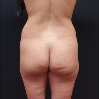 25-34 year old woman treated with Butt Augmentation before 3267009