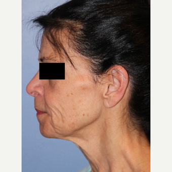 65-74 year old woman treated with Facelift, Fat Grafting, Fractional CO2 Laser, Facial Fillers before 3215286