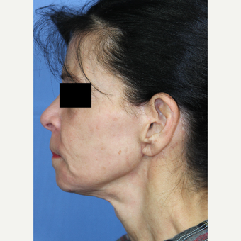 65-74 year old woman treated with Facelift, Fat Grafting, Fractional CO2 Laser, Facial Fillers after 3215286