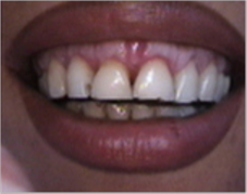 Smile make over, dental crowns, porcelain veneers, gummy smile before 1490459