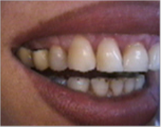 Smile make over, dental crowns, porcelain veneers, gummy smile 1490459