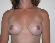 Mastopexy  after 112094