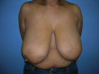 Breast Reduction before 1270472