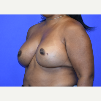 45-54 year old woman treated with Breast Augmentation after 3376814