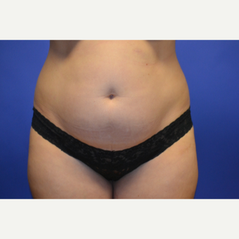 35-44 year old woman treated with Tummy Tuck before 3611036