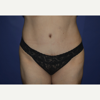 35-44 year old woman treated with Tummy Tuck after 3611036