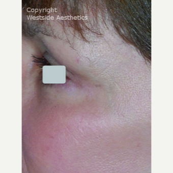 CO2 Laser for the Eye Area after 3075701