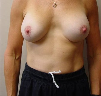 Breast Lift/Augmentation after 318565