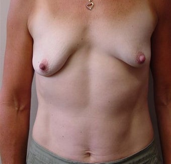 Breast Lift/Augmentation before 318565
