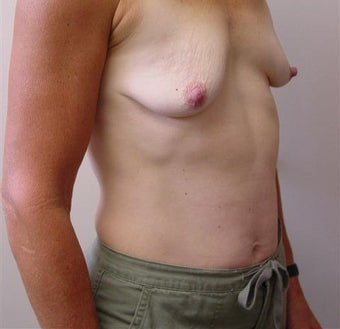 Breast Lift/Augmentation 318565