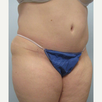 36 year old woman treated with Tummy Tuck after 3680173