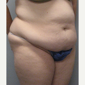 36 year old woman treated with Tummy Tuck before 3680173