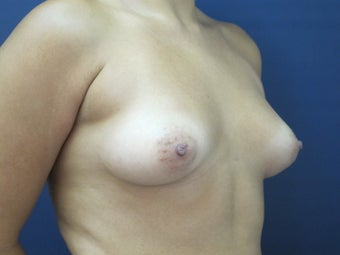 25-34 year old woman treated with Breast Fat Transfer before 2611064
