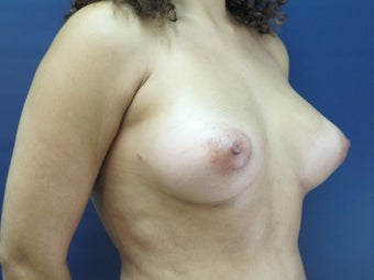 25-34 year old woman treated with Breast Fat Transfer after 2611064