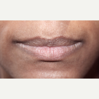 25-34 year old woman treated with Juvederm before 3171688