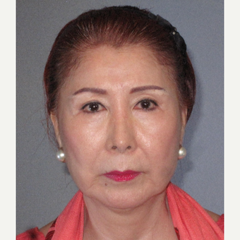 65-74 year old woman treated with Facelift before 3650749