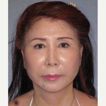65-74 year old woman treated with Facelift after 3650749