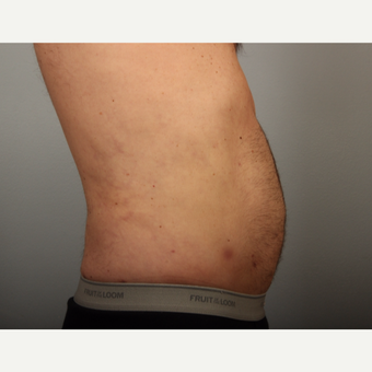 56 year old man with localized lipodystrophy in the abdominal and flank region. after 3449016