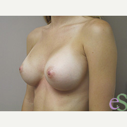 Breast Implants after 3373641