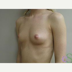 Breast Implants before 3373641