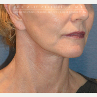 Before and After a Facelift after 3613824