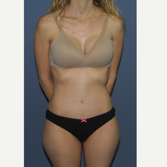 35-44 year old woman treated with Tummy Tuck after 3559197