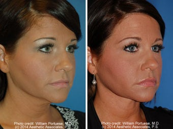 Neck Liposuction before 1389503