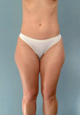Liposuction of the Outer Thighs / Saddlebags before 1219733