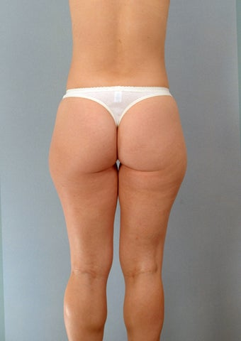 Liposuction of the Outer Thighs / Saddlebags 1219733
