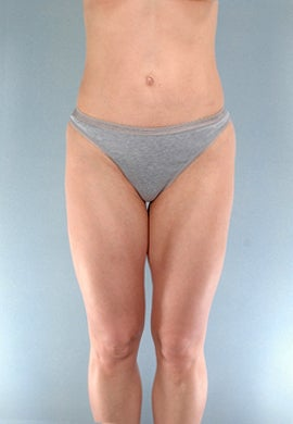 Liposuction of the Outer Thighs / Saddlebags after 1219733