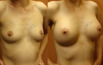 Breast Implants before 974260