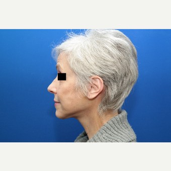 65-74 year old woman treated with Facelift after 3103057