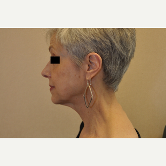 65-74 year old woman treated with Facelift before 3103057