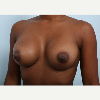 Breast Augmentation after 3345163