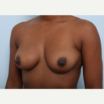 Breast Augmentation before 3345163