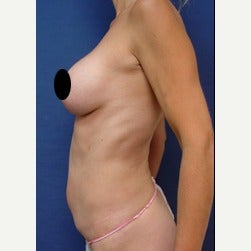 45-54 year old woman treated with Mini Tummy Tuck before 2073415