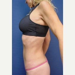 45-54 year old woman treated with Mini Tummy Tuck after 2073415
