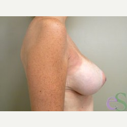 Breast Implant Revision after 3373475