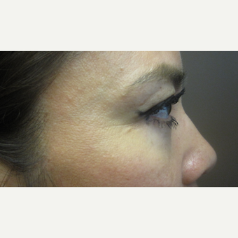 35-44 year old woman treated with Eye Bags Treatment after 3253333