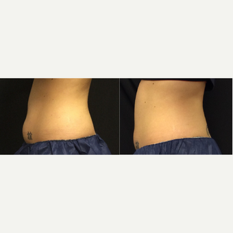 25-34 year old woman treated with CoolSculpting