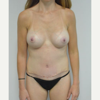 35-44 year old woman treated with Mommy Makeover after 3282969