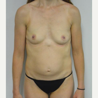 35-44 year old woman treated with Mommy Makeover before 3282969