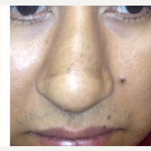 25-34 year old woman treated with Rhinoplasty before 3809081