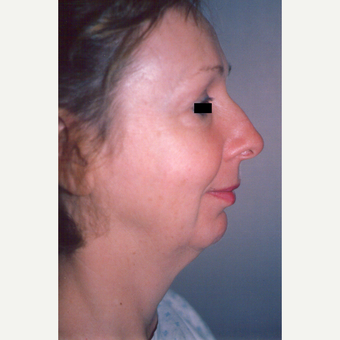 45-54 year old woman treated with Facelift before 3538964