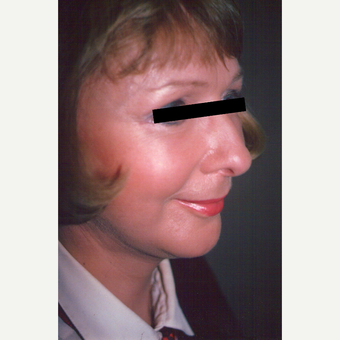 45-54 year old woman treated with Facelift after 3538964
